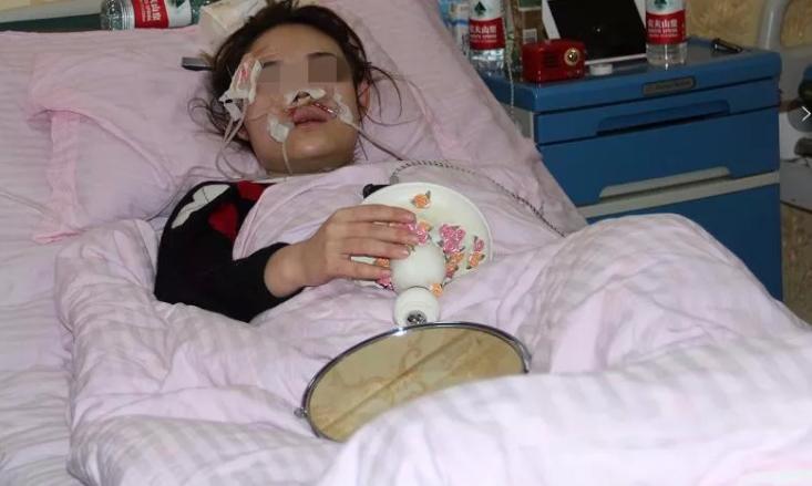 25岁校花女孩路边蹲下摸流浪狗 脸部被咬成重伤